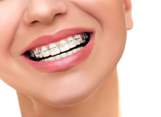 La ortodoncia no asegura la salud bucal a largo plazo, afirma estudio