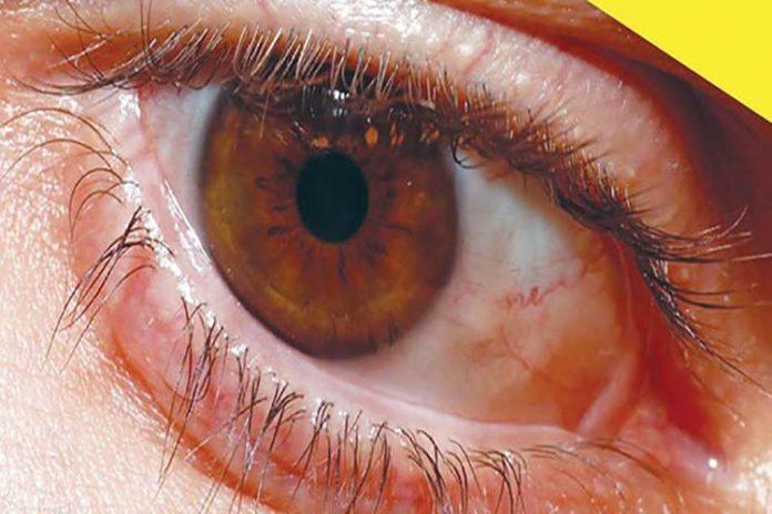 La retinopatía diabética es la segunda causa de ceguera