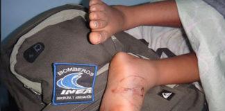 Dos niños y un adolescente fueron mordidos por serpientes venenosas en Buchivacoa