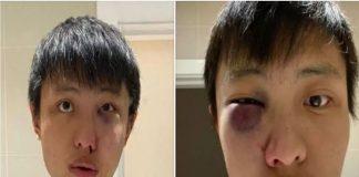 """""""No quiero tu coronavirus en mi país"""", le decían a asiático brutalmente golpeado en Inglaterra"""
